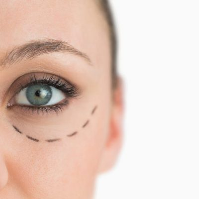 10 Things To Consider Before Getting Cosmetic Surgery