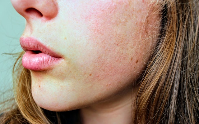 10 ways Diamond CBD and CBD oil is good for your skin | The
